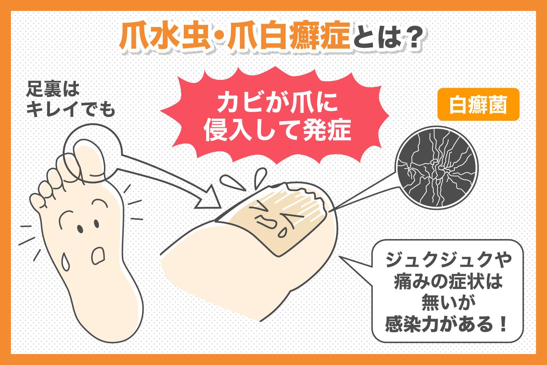 爪水虫・爪白癬症とは?