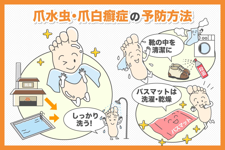 爪水虫・爪白癬症の予防方法